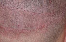 colorisation et caouflage cicatrices
