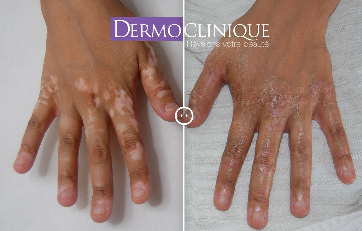 Camouflage du vitiligo
