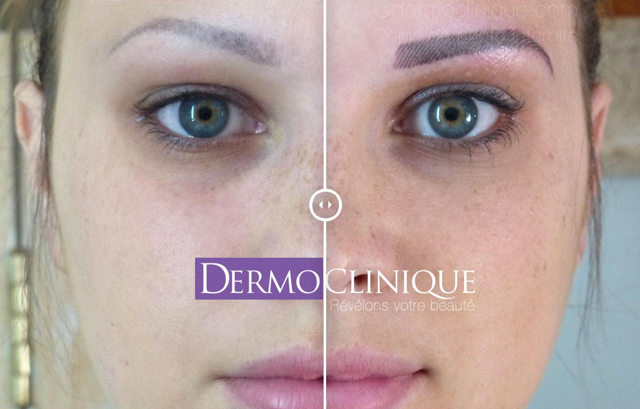 maquillage permanent dermoclinique. Black Bedroom Furniture Sets. Home Design Ideas